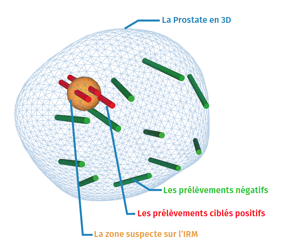 https://www.urologie-foch.fr/wp-content/uploads/2019/12/Prostate-Koelis.png